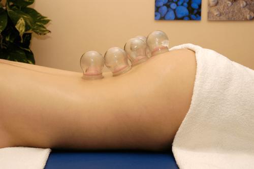 Taller de masaje con ventosas, ventosas de cristal, aplicación de ventosas en la columna. Terapias García y lledo proporciona certificado de asistencia y diploma.
